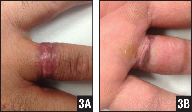 Dorsal (A) and palmar (B) photographs showing the healed skin graft and full extension 4 weeks postoperatively.