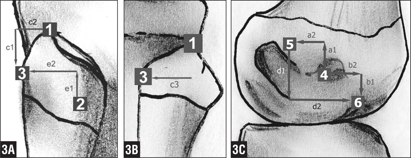 Schematic details of a right knee. Lateral view of the fibular head showing the fibular styloid process (1), fibular lateral collateral ligament insertion (2), and fibular popliteofibular ligament insertion (2). e1=proximal and e2=posterior distance between the lateral collateral ligament and popliteofibular ligament footprint. c1=distal and c2=posterior distance between the styloid process and popliteofibular ligament footprint (A). Posterior view of the fibular head showing the fibular styloid process (1) and fibular popliteofibular ligament insertion (3). c3=medial distance between the styloid process and popliteofibular ligament footprint (B). Lateral view of the lateral femoral condyle showing the lateral femoral epicondyle (4), femoral lateral collateral ligament insertion (5), and femoral popliteus tendon insertion (6). a1=proximal and a2=posterior distance between the epicondyle and lateral collateral ligament footprint. b1=distal and b2=anterior distance between the epicondyle and popliteus tendon footprint. d1=distal and d2=anterior distance between the lateral collateral ligament and popliteus tendon footprint (C).