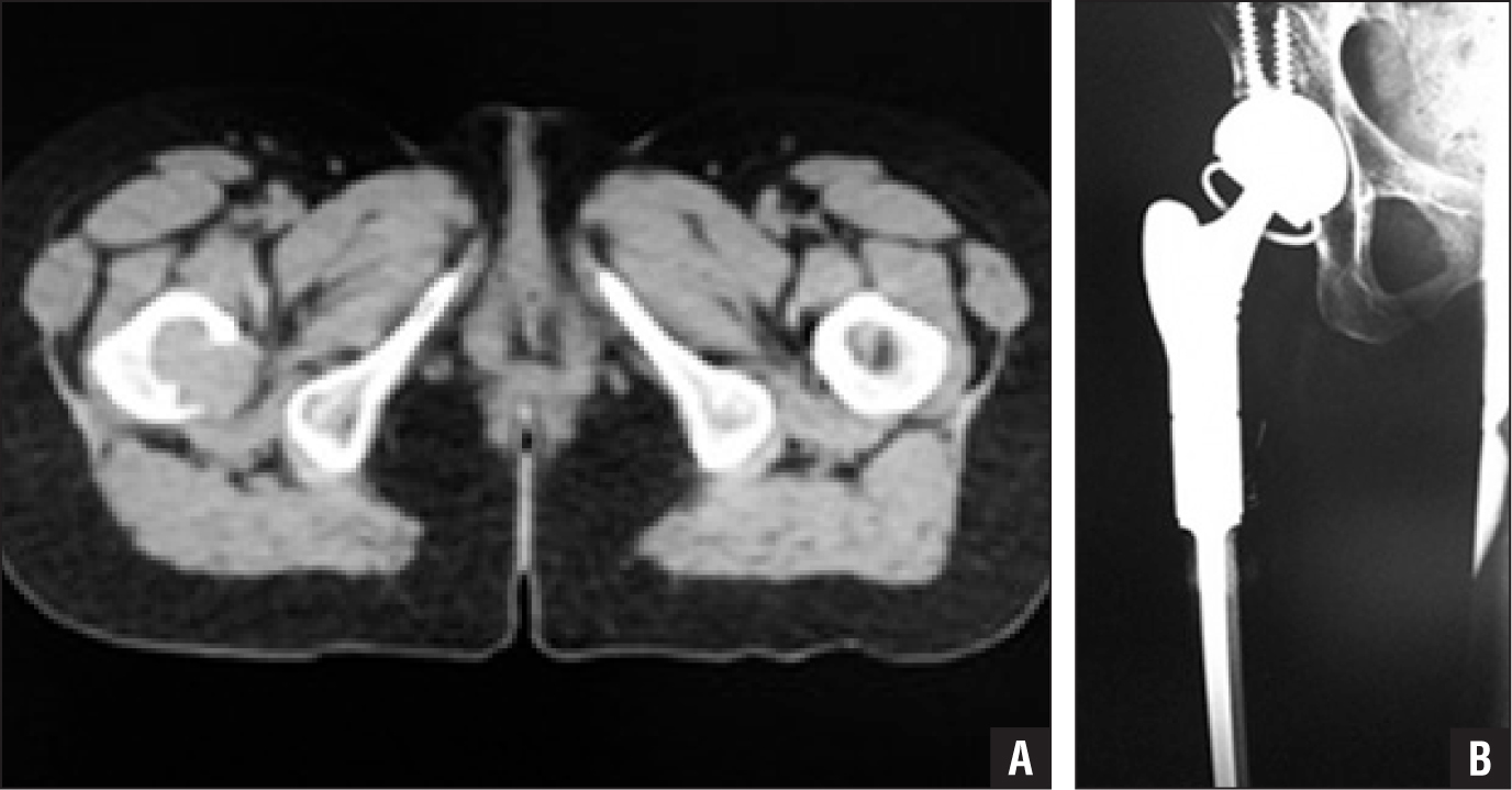 Preoperative coronal computed tomography scan showing destruction of the proximal femur by metastatic hepatocellular carcinoma (A). Postoperative anteroposterior radiograph showing proximal femoral replacement and a GMRS proximal femur and tritanium cup (Howmedica/Osteonics, Mahwah, New Jersey) in a neutral position (B).