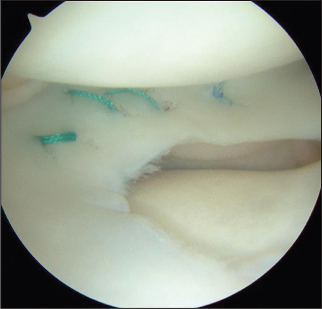 Intraoperative arthroscopic lateral compartment image after inside-out lateral meniscal repair (Patient 1).