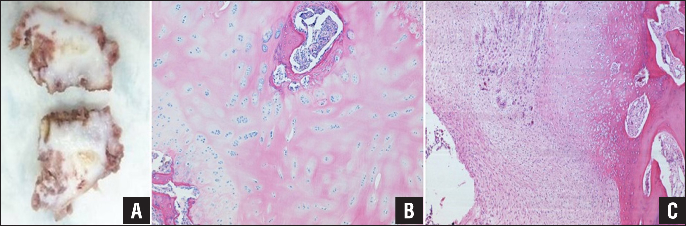 """Avulsed fragment of the L5 spinous process. The fragment of cortical bone is surrounded by a pale white cartilaginous proliferation (callus) (A). Microscopic view of the insertion of the interspinous ligament. This section contains hypercellular cartilaginous tissue with neovascularization, disordered organization, matrix production, and endochondral ossification with woven bone. The chondrocytic clustering implies a chronic injury pattern (hematoxylin and eosin, original magnification ×4) (B). Callus from the L3 spinous process from the previously described patient with the same injury pattern. Note the hypercellular, """"pseudosarcomatous"""" appearance of the callus in this case (hematoxylin and eosin, original magnification ×4) (C)."""