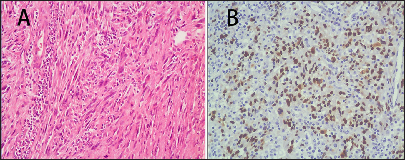 The area of the tumor shows that the predominant cell was spindle shaped with an elongated nucleus. Tumor osteoid formation and residual areas of giant cell tumor were not found (hematoxylin and eosin stain; original magnification, ×200) (A). Almost all of the spindle-shaped tumor cells in the sarcomatous component showed strong expression of the p53 protein (immunohistochemistry stain, original magnification, ×200) (B).