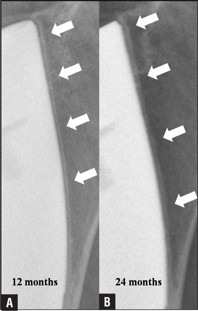 Serial magnified radiographs of a 73-year-old woman showing the reactive radiodense line on the tensile side of the stem (zones 1 and 2) at 12 months (A) and 24 months (B) postoperatively. A gradual increase in thickness and condensation of the line is noted.