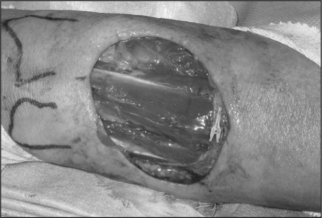 Surgical exposure of the left dorsal forearm after tumor excision. The distal radius and ulna were marked on the skin. The extensor tendons are exposed.