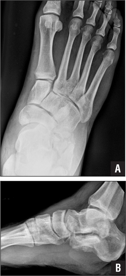 Anteroposterior (A) and lateral (B) radiographs of the right foot of a 49-year-old man involved in a high-speed motor vehicle collision. A nondisplaced fracture of the navicular body is present, in addition to a Gustillo grade 1 open calcaneus fracture. The patient was taken to the operating room the day of presentation, where he underwent an irrigation and debridement of his calcaneus in association with an open reduction and percutaneous pinning. The navicular fracture was managed non-operatively. Navicular body fractures are often seen concurrently with other foot trauma. This is attributed to the significant force required to fracture the navicular body.