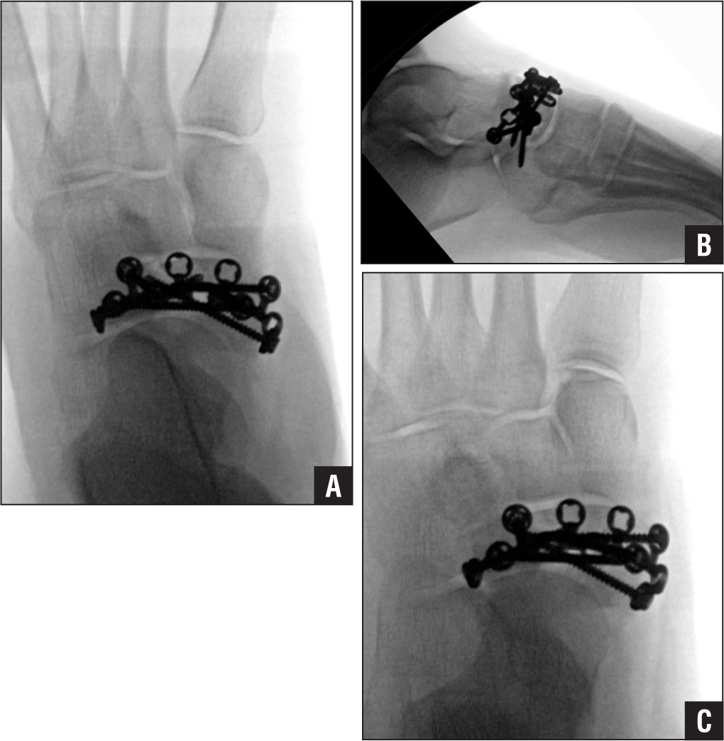 Anteroposterior (A), lateral (B), and oblique (C) fluoroscopy images obtained during open reduction and internal fixation of the type-2 body fracture shown in Figure 7. A dual an-teromedial and lateral approach was used. A 2.4-mm navicular plate was used.