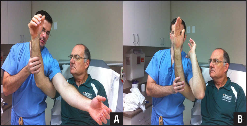 To perform the single-person reduction method, the physician places one arm over the injured elbow (A). The physician flexes his elbow into a position where the patient's hand or wrist can be grasped by radially deviating the physician's hand (B).
