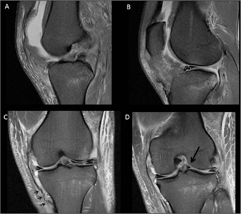 Magnetic resonance imaging obtained for Patient 2. T2 sagittal cut showing an anterior cruciate ligament rupture (A). T2 sagittal cut showing a patellar tendon rupture (B). T2 coronal cut showing a medial collateral ligament tear (C). Arrows indicate the tibial-based detachment of the medial collateral ligament tear. T2 coronal cut showing a displaced lateral meniscus tear (D). Arrow indicates the displaced meniscus.