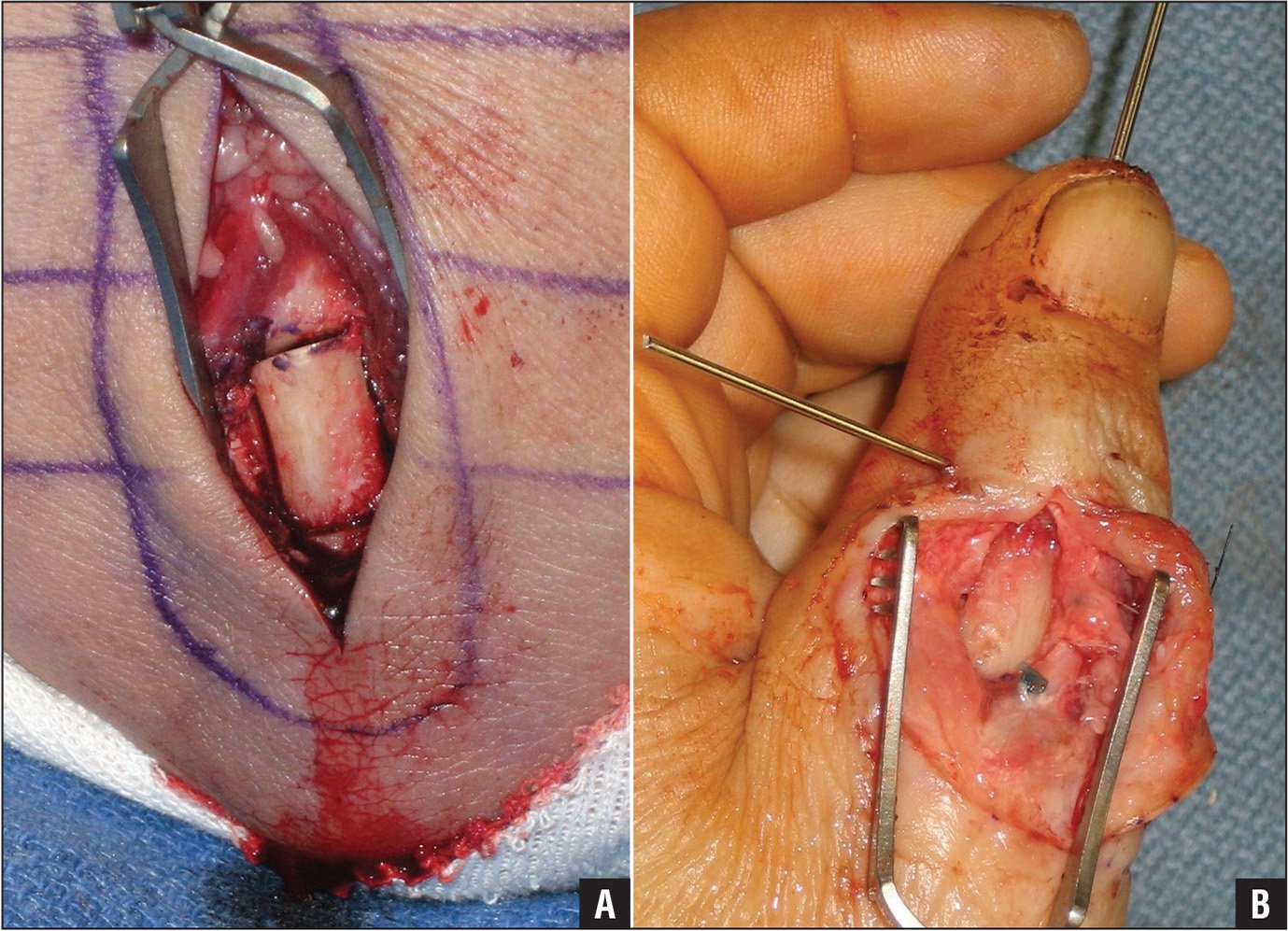 Harvest (A) and placement of the olecranon bone graft (B).