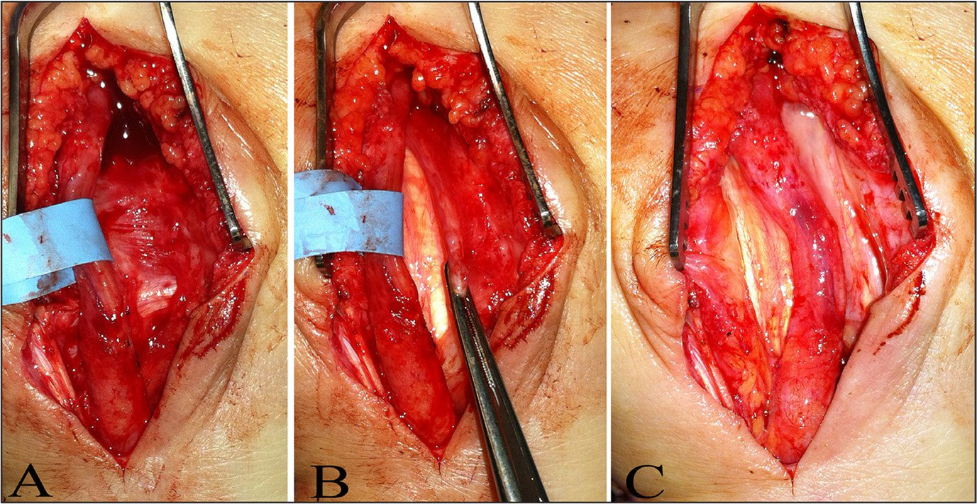 Intraoperative photographs showing the median nerve in a superficial position just dorsal to the palmaris longus and volar to a healed transverse carpal ligament (A). Forceps grasping the healed transverse carpal ligament dorsal to the medial nerve (B). Resection of the healed transverse carpal ligament with the median nerve released and returned to its normal anatomic location adjacent to the flexor tendons (C).
