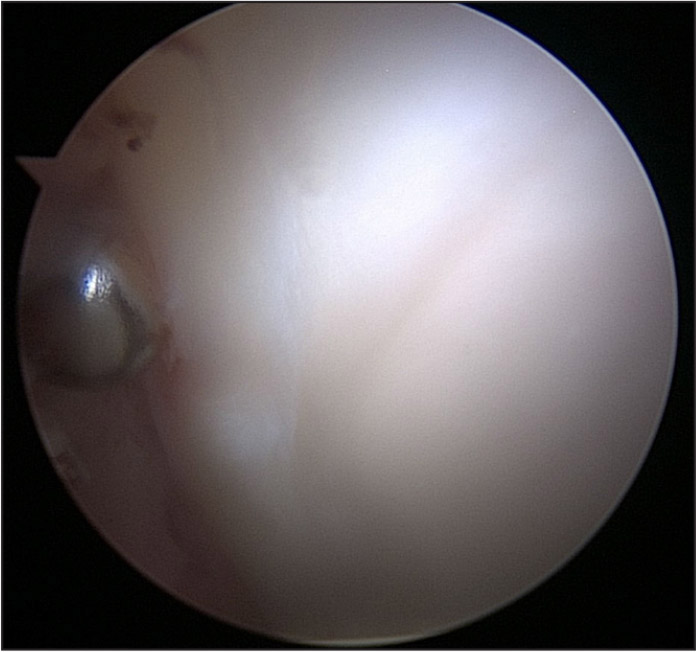 The wave sign is delamination of the anterosuperior acetabular cartilage recognized during hip arthroscopy and represents outside-in damage from cam impingement on the acetabular labrum and the force ultimately transmitted to the articular cartilage.