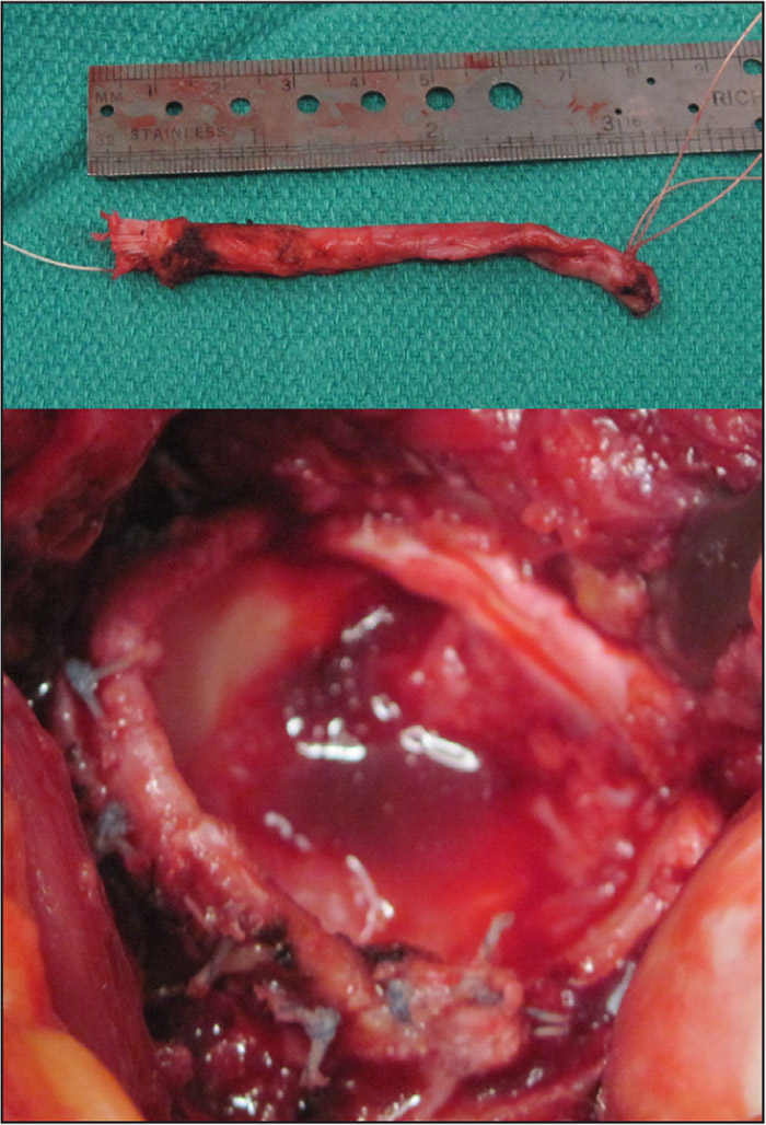 Case involving ossification of the labrum, labral resection, and labral reconstruction with a tubularized segment of the patient's own fascia lata.