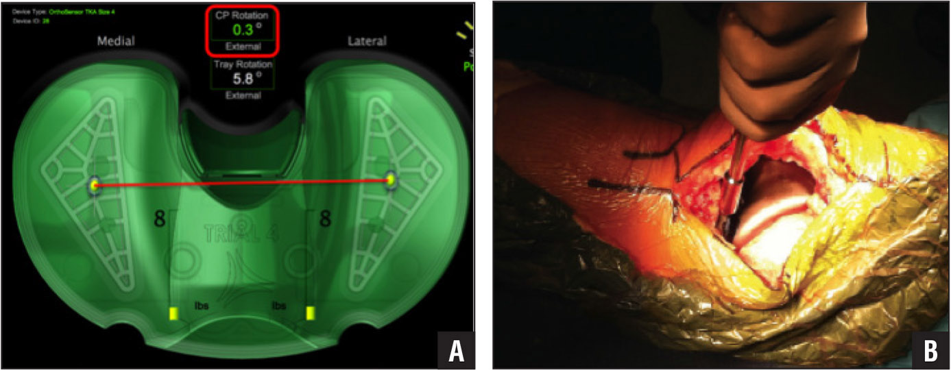 VERASENSE (OrthoSensor, Inc, Dania, Florida) sensor as shown on the graphic user interface. The contact point rotation degree (red box) references the degree of tibiofemoral incongruity. The yellow circles correspond to femoral contact points. The number 8 represents total pounds of pressure in the medial and lateral compartments (A). Custom handle is affixed to the tibial tray to guide internal and external rotational adjustment (B).
