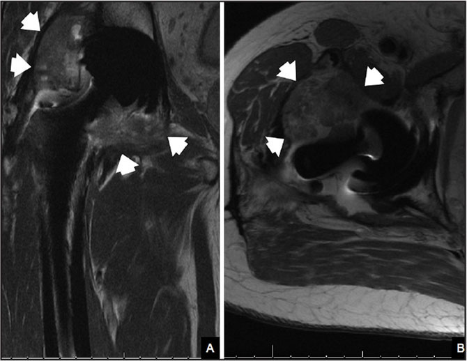 Patient 1: Coronal (A) and axial (B) magnetic resonance imaging view of the right hip demonstrated marked distension of the joint capsule by fluid and markedly thickened hyperintense debris/granulation tissue (arrowheads). Osteolysis is noted at the inner posterior margin of the acetabular component. Chronic disruption of hip abductor muscle is noted with muscle atrophy. Findings were read as compatible with adverse reaction to metallic debris from the metal-on-metal prosthesis.
