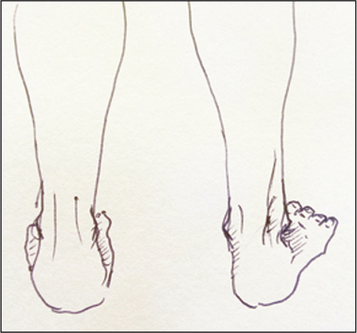 """""""Too many toes"""" sign on the right foot."""