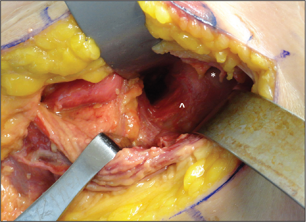 Cobra retractors placed inside the capsulotomy. The femoral head (*) and neck (^) are now well visualized.