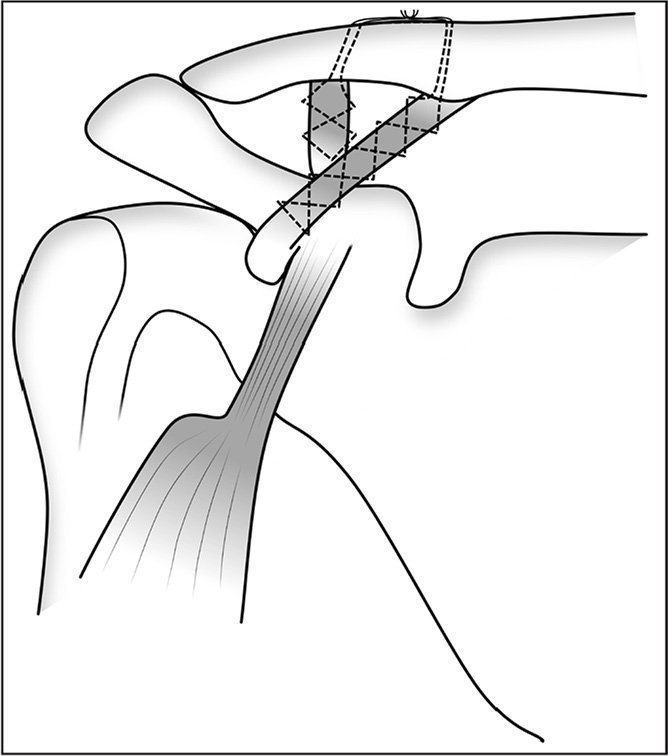 Anatomical Double Bundle Coracoclavicular Reconstruction In Chronic