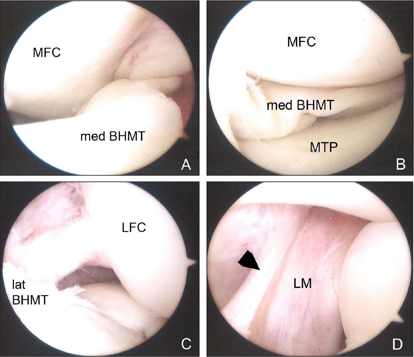 Images from a left knee taken from the anterolateral portal during diagnostic arthroscopy. The medial bucket handle meniscal tear (med BHMT) is seen displaced into the intercondylar notch lateral to the medial femoral condyle (MFC) (A). The medial bucket handle meniscal tear is subsequently seen reduced after manipulation with an arthroscopic probe. The medial tibial plateau (MTP) is seen (B). The lateral bucket handle meniscal tear (lat BHMT) is similarly seen displaced within the intercondylar notch medial to the lateral femoral condyle (LFC) (C). Within the intercondylar notch, the ligamentum mucosum (LM) is seen overlying the anterior cruciate ligament (arrowhead) (D).