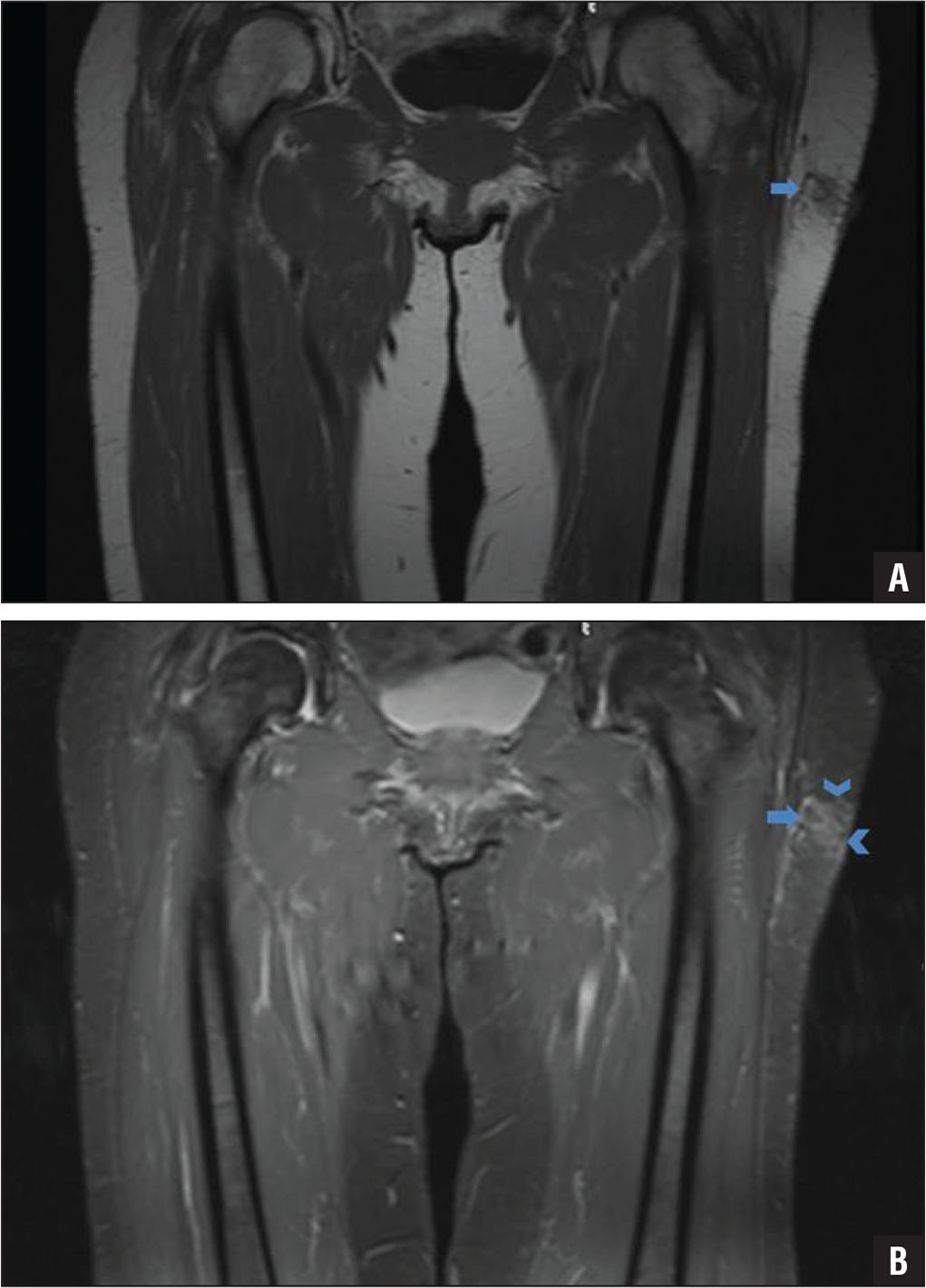 Magnetic resonance images of the pelvis obtained at initial presentation to evaluate a clinically palpable mass in the left thigh. Coronal T1-weighted image of the left thigh showing a small subcutaneous fatty mass (arrow) with ill-defined margins (A). Coronal T2-weighted fat-suppressed image showing homogeneous suppression of fat signal inside the lesion (arrow) with overlying subcutaneous edema (arrowheads) (B).