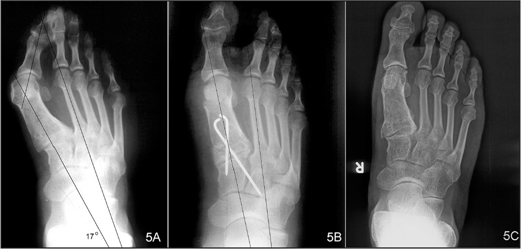 �A;Full weight-bearing radiograph of the right foot showing severe hallux valgus in a 42-year-old man. The hallux valgus angle was 42° and the 1–2 intermetatarsal angle was 17° (A). The hallux valgus angle was reduced to 10° and the 1–2 intermetatarsal angle was reduced to 7° on the immediate postoperative radiograph (B). At 5 years postoperatively, there was no loss in either value (C).