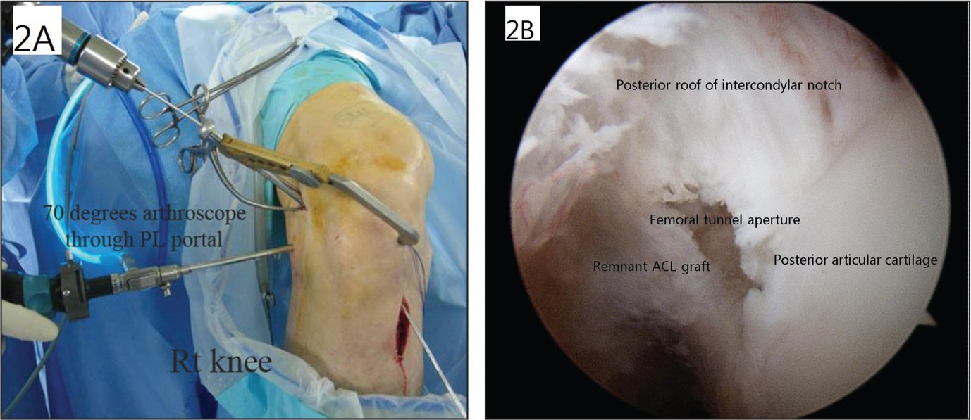 Outside photograph of formation of the femoral tunnel created under visualization through the posterolateral (PL) portal in the right (Rt) knee (A). The arthroscope is inserted through the PL portal, and the guide is introduced through the anterolateral portal (B). Abbreviation: ACL, anterior cruciate ligament.
