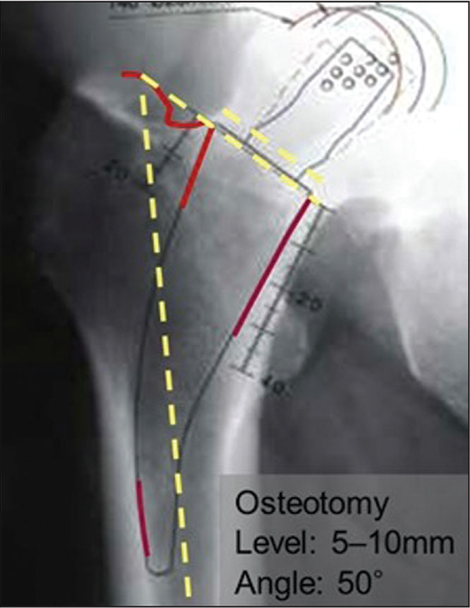 Radiographic templates showing a 5- to 10-mm–thick ring of cortex around the femoral neck that provides considerable anchorage. Osteotomy of the femoral neck is performed at an angle of 50° to the femoral shaft axis, measuring the distance from the lesser trochanter.