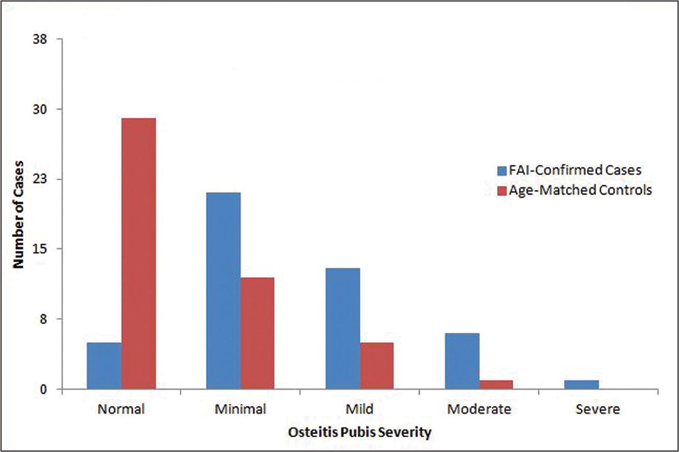 Severity of osteitis pubis based on a 4-point Likert scale from minimal to severe (0=normal/no osteitis pubis, 1=minimal, 2=mild, 3=moderate, 4=severe). Abbreviation: FAI, femoroacetabular impingement.