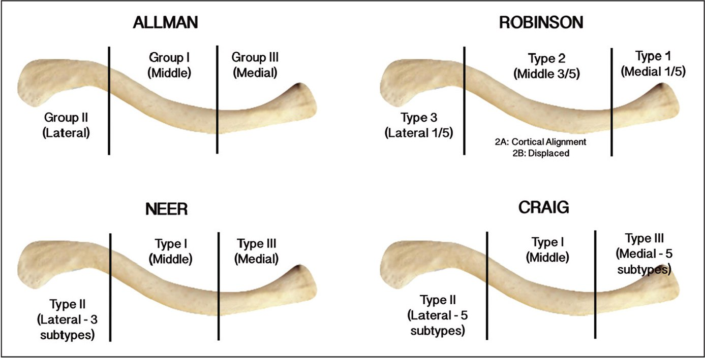 Visual comparison of the Allman, Neer, Robinson, and Craig clavicle fracture classification systems. Further information regarding classification of subtypes can be found in Table 1.