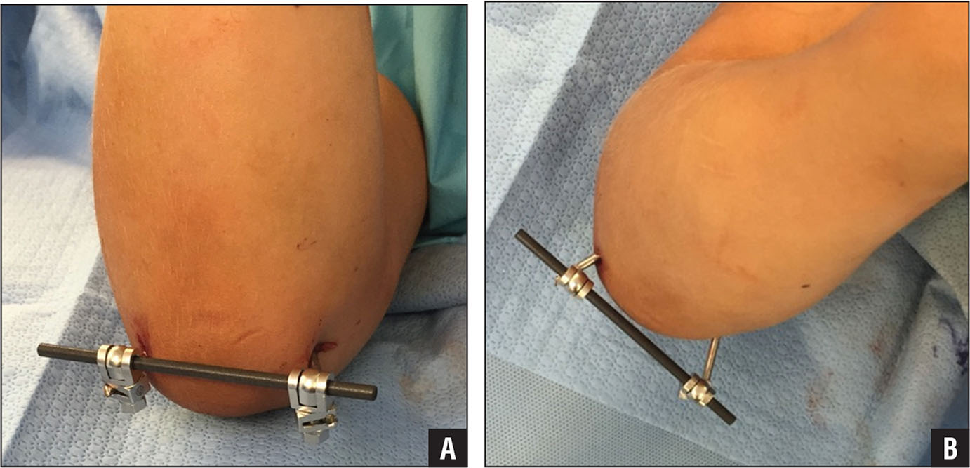 Photographs of the right elbow (A) and upper extremity (B) of an 8-year-old boy with a small AO external fixator bar between 2 pins. Intraoperatively, hand compression was observed after reduction and percutaneous pinning.