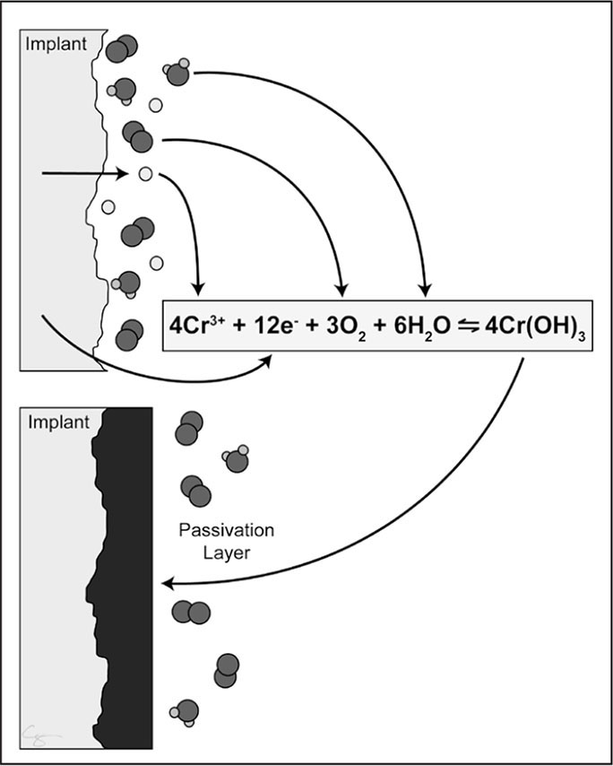 The passivation layer is an oxidized metal (black). The passivation layer prevents further degradation of the underlying stock metal (implant, gray). Metal implanted into the body has reacted with oxygen and is passivated (chromium III hydroxide [Cr(OH)3]). However, damage to the passivation layer results in exposure of the stock metal (composed of chromium [Cr] and electrons [e−]), which reacts oxygen (O2) and water (H2O), resulting in repassivation. (© Chrisoula Toupadakis Skouritakis, printed with permission.)