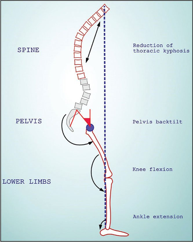 Illustration of the body's compensatory mechanisms to sagittal imbalance.
