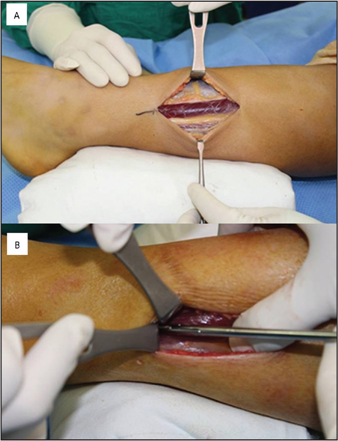 An 8-cm longitudinal skin incision was made at the mid-calf level, in the lateral aspect (A). The underlying fascia was cut from proximal to distal, 8 cm in the longitudinal direction (B).