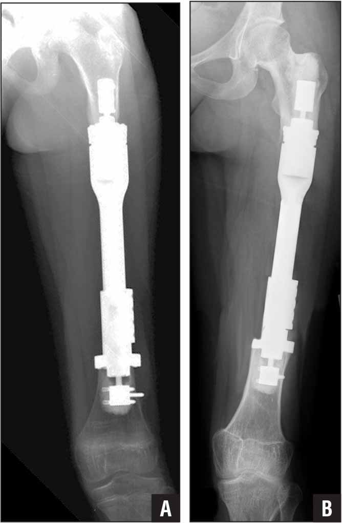 Anteroposterior radiograph of intercalary endoprosthetic reconstruction for case 1 showing the index reconstruction with bipolar short segment compressive fixation. Both femoral physes were spared, with cementation and custom shortened anchor plug required distally (A). Follow-up anteroposterior radiograph 8 years after index procedure. Note successful continued normal growth of the limb as a result of the custom component sparing the adjacent physes (B).