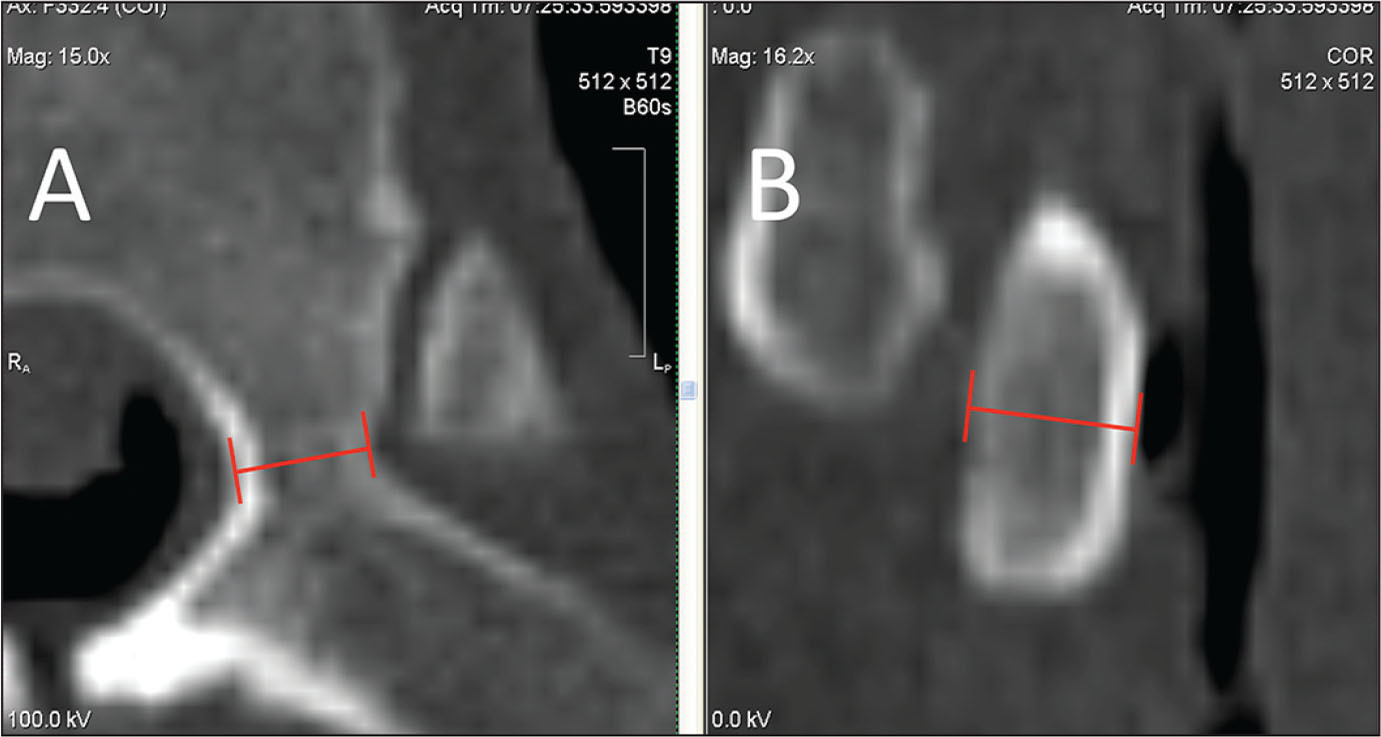 Examples of transverse (A) and coronal (B) computed tomography scans showing the minimum pedicle diameter (red).