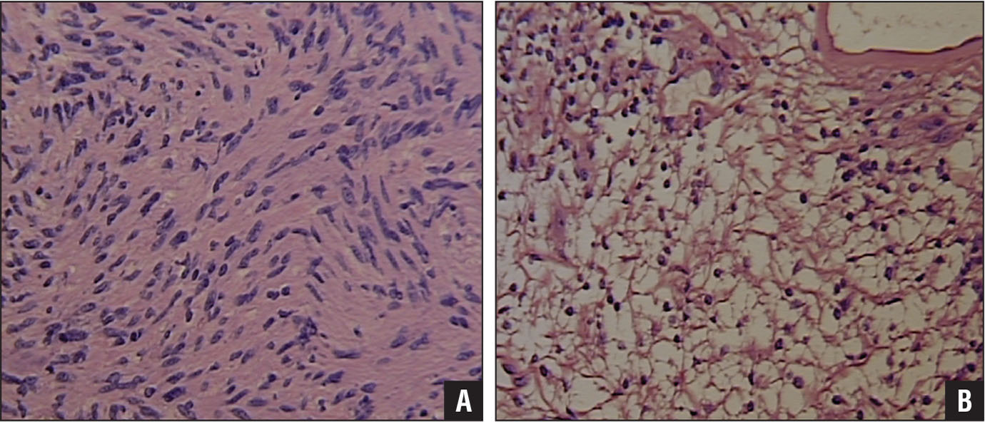 Pathology of a schwannoma. Histology slide of the Antoni A cellular area of the schwannoma (original magnification ×200) (A). Histology slide of the Antoni B myxoid area of the schwannoma (original magnification ×200) (B).