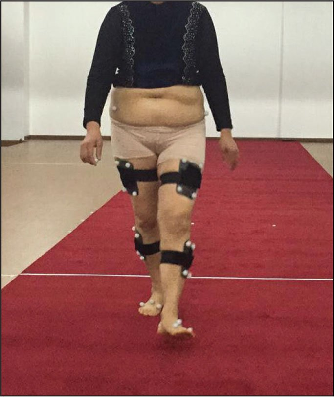 Three-dimensional gait testing of a patient with hip dysplasia after total hip arthroplasty.