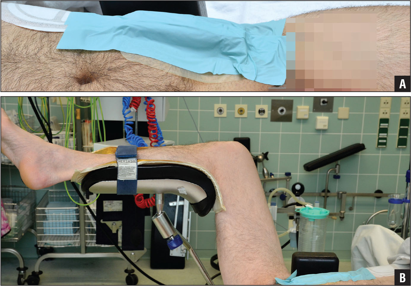 Placement of the smartphone on the contralateral anterosuperior iliac spine in supine decubitus for the transgluteal (A) and the minimally invasive anterolateral (B) approach.
