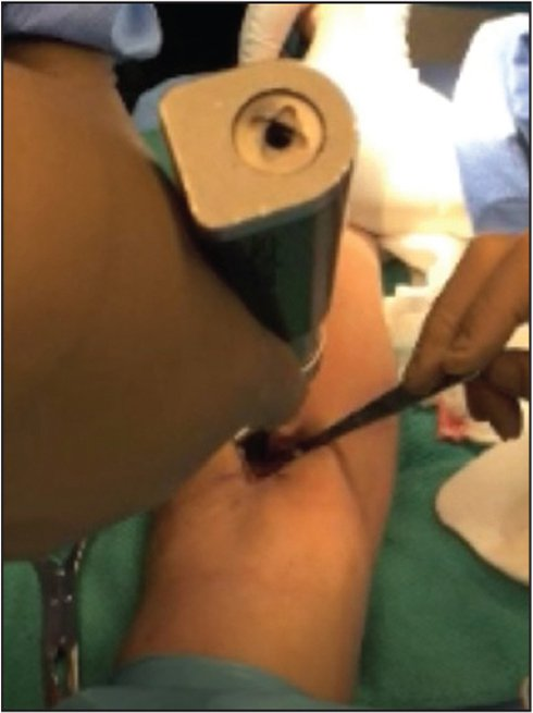 The far cortex is reamed using a 4.5-mm diameter rigid reamer that is angulated distal and ulnar to avoid damaging the posterior interosseous nerve.
