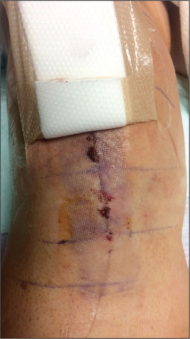 Use Of 2 Octyl Cyanoacrylate Adhesive And Polyester Mesh For Wound