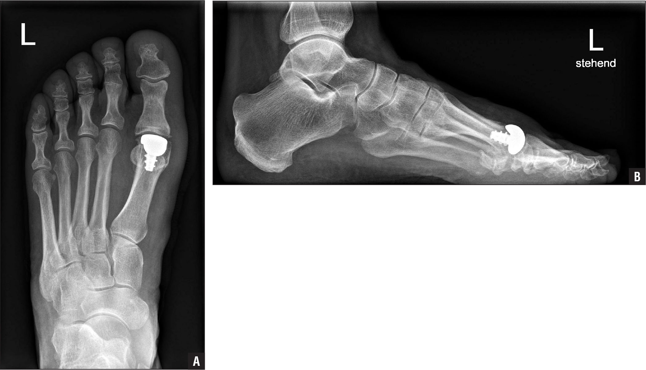 A 49-year-old patient 1 year after implantation of a first metatarsophalangeal HemiCAP DF (Arthrosurface Inc, Franklin, Massachusetts) hemiarthroplasty prosthesis with dorsal flange. Standard weight-bearing dorsoplantar (A) and lateral (B) radiographs of the foot.