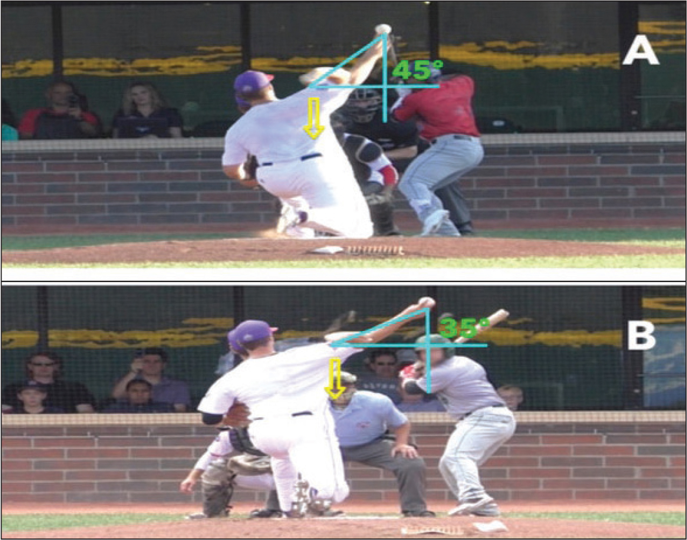 Representative example of components assessed in the path of arm acceleration category from the centerfield camera view. A pitcher in the lower scoring position with a lower arm slot position in late cocking occurring further from the midline of the body (A). A pitcher in the higher scoring position with a higher arm slot, with point of maximal late cocking closer to the midline of the body (B). Angle between white lines is the arm slot angle (angle between throwing arm and horizontal). Yellow arrows indicate point of late cocking.