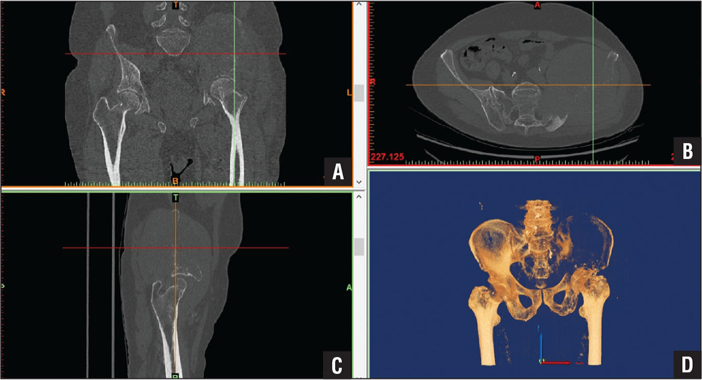 A 3-dimensional volume reconstruction of a pelvic mass based on raw data provided by multi-planar computed tomography. Coronal (A), transverse (B), and sagittal (C) views and 3-dimensional (D) reconstruction of the pelvis showing the osteolytic destruction of the left hemipelvis.