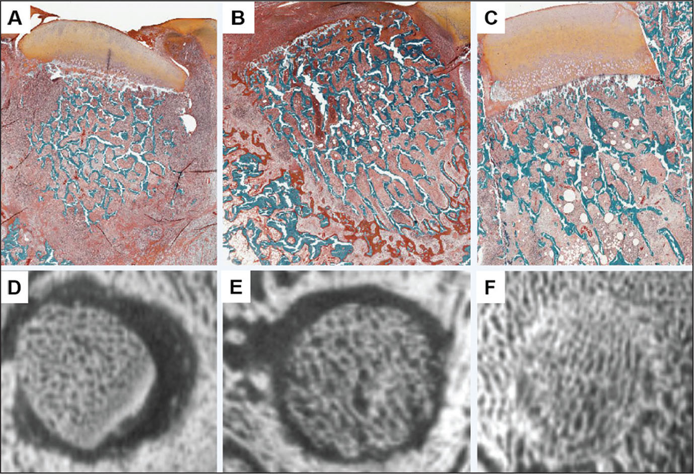 Safranin-O/Fast Green–stained decalcified histologic sections after 6 weeks of transplantation in miniature swine after grafts were stored in media alone (control) (A), etidronate-supplemented storage media (B), or risedronate-supplemented storage media (C) (all original magnification ×1.2). Corresponding µCT imaging of grafts stored in media alone (control) (D), etidronate-supplemented storage media (E), or risedronate-supplemented storage media (F).