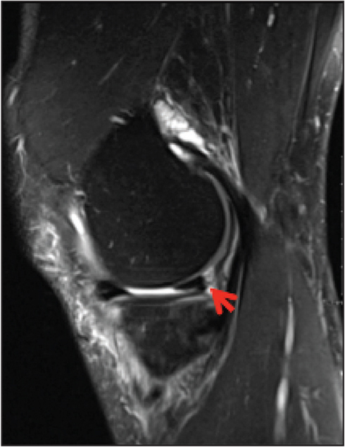 Sagittal T2 magnetic resonance image showing the inferiorly displaced meniscal fragment (arrow).