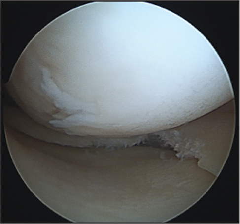 Arthroscopic image after partial meniscectomy of the previously displaced tissue.