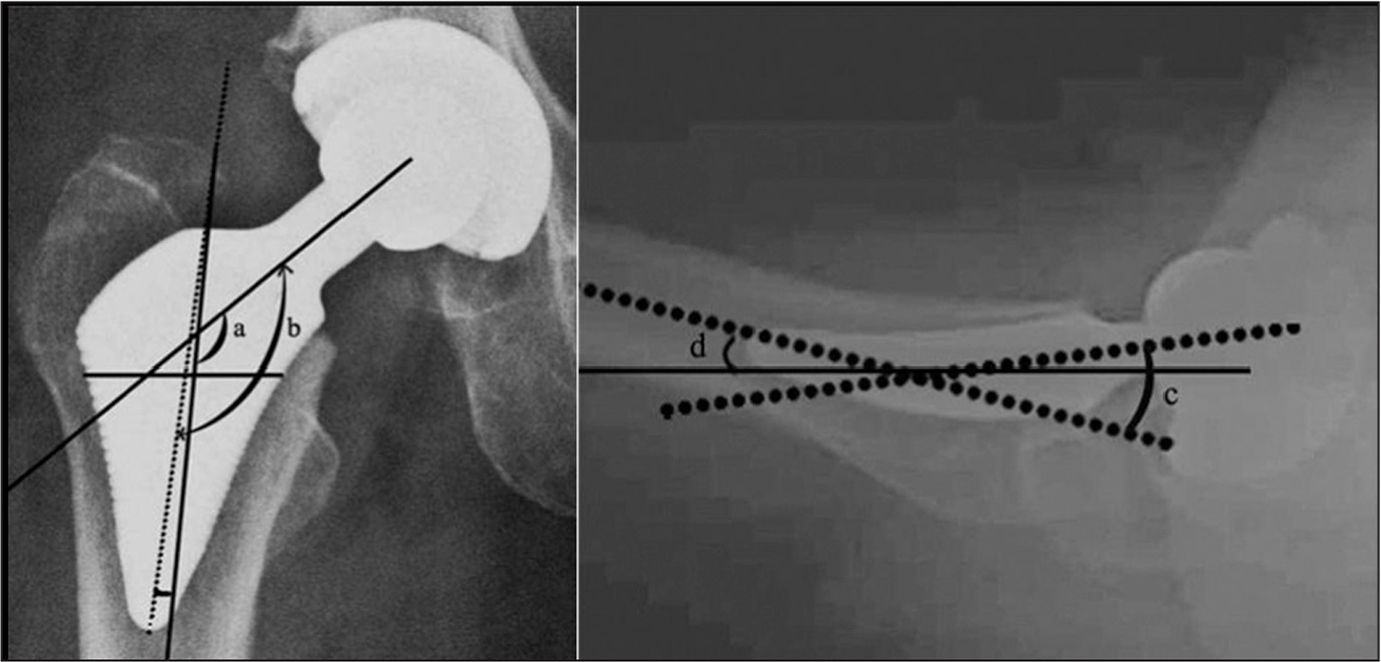 Postoperative anteroposterior (left) and lateral (right) radiographs assessing the position of the implant. The position of the stem in the anteroposterior plane was determined by comparing the angle of the anteroposterior prosthetic neck–femoral shaft (a) with the angle of the prosthetic neck–stem (b) (130°). In neutral position, a equals b (or they are within 3° of each other). In varus position, a is less than b. In valgus position, a is greater than b. The position of the stem in the lateral plane was determined by comparing the angle of the lateral prosthetic neck–femoral shaft (c) with the angle of the lateral prosthetic neck–shaft (d) (5°). In anatomical position, c equals d (or they are within 3° of each other). In anteverted position, c is less than d.