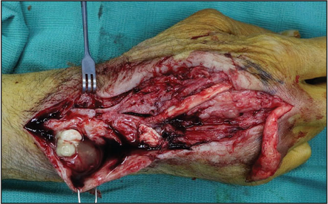 Radical debridement of extensor compartments 2 to 5 with extensor carpi radialis brevis sparing 10 weeks after index surgery due to persistent drainage and exposed tendon along distal incision with inability to extend middle and ring fingers.