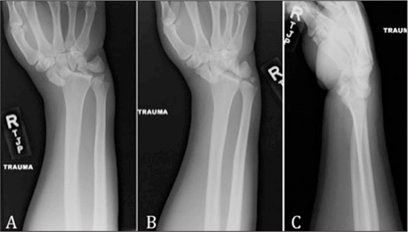 """A stage IV lunate dislocation. Note the """"piece of pie"""" sign on the anteroposterior (A) and oblique (B) radiographs and the """"spilled teacup"""" sign on the lateral (C) radiograph."""