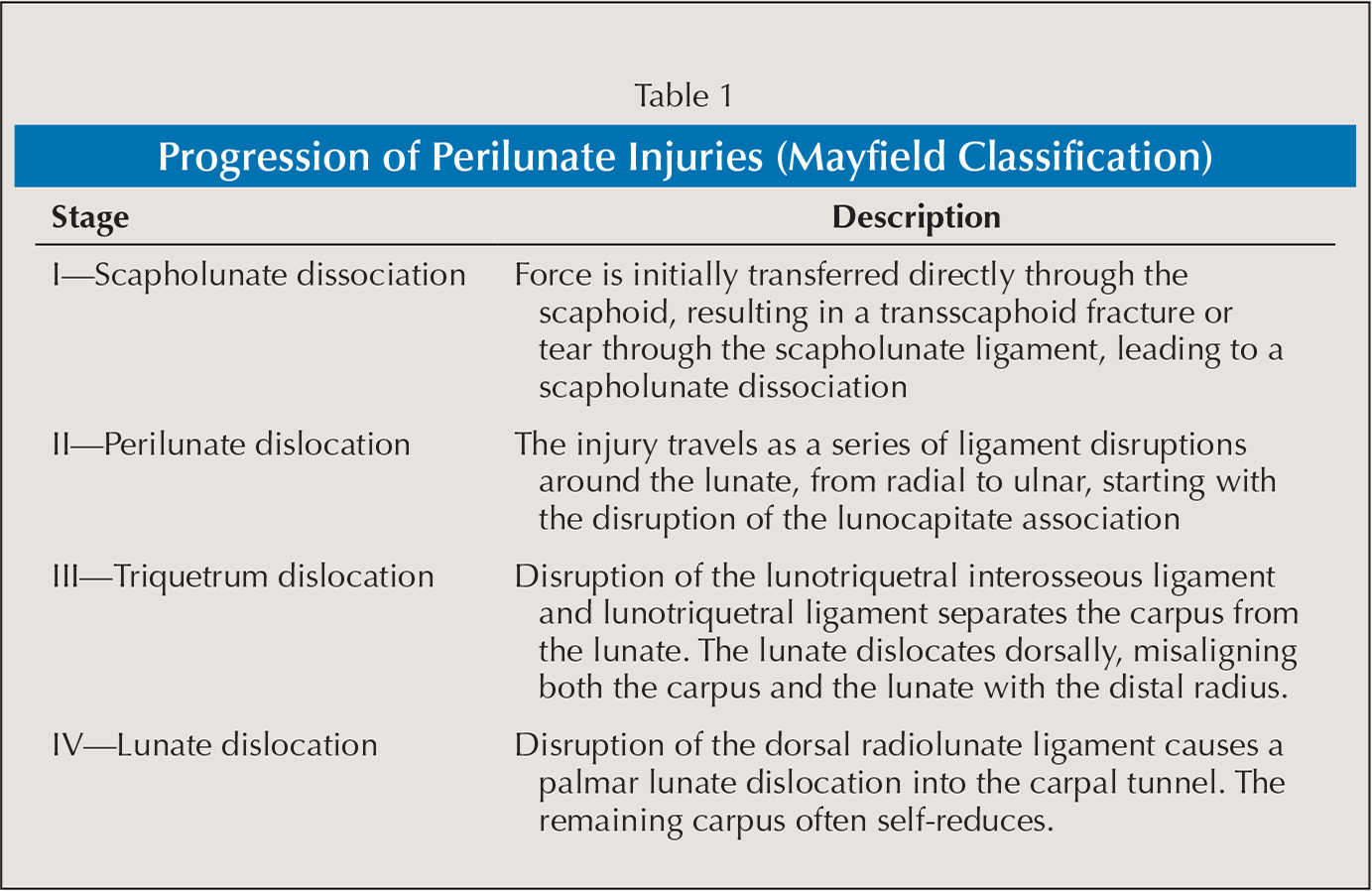 Progression of Perilunate Injuries (Mayfield Classification)