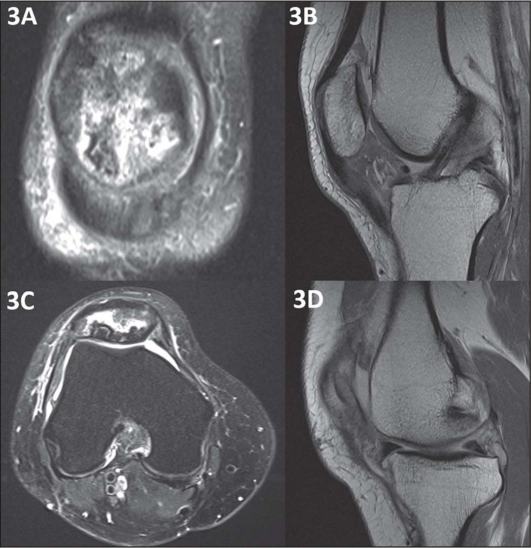 Coronal (A), sagittal (B, D), and axial (C) magnetic resonance images at 5 months postoperatively showing hyperintense signal within the patella (A, B, C) and significant scarring and absence of adipose tissue (B) within the previously imaged anterior fat pad.